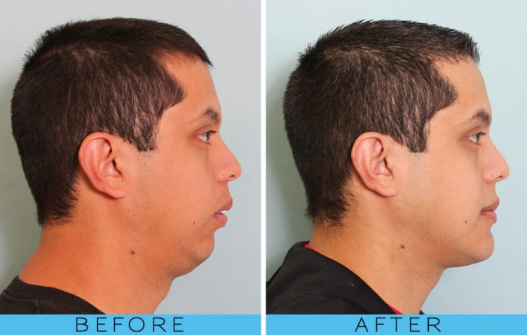 Before and After Facial Development Breathing Pattern 2