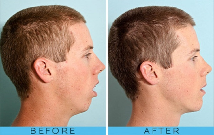Before and After Facial Development Breathing Pattern