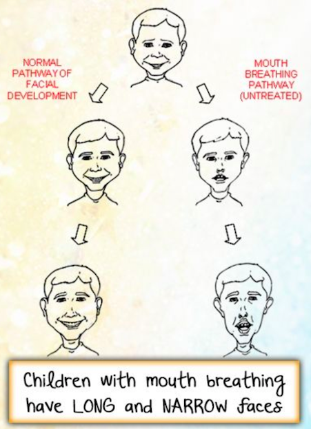 Facial Development Pathway