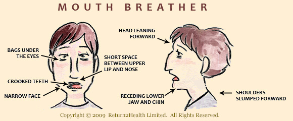 Return2Health Mouth Breather