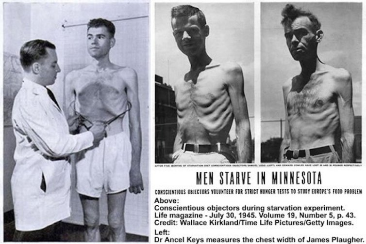 The Minnesota Semi Starvation Experiment, Photograph 2