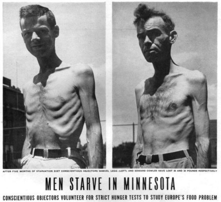 The Minnesota Semi Starvation Experiment, Photograph 8